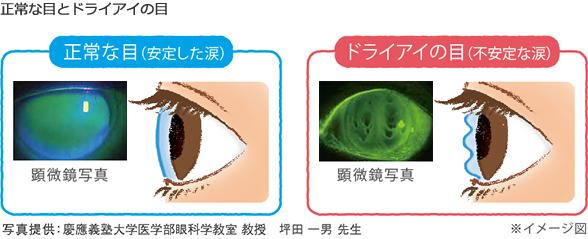 正常な目とドライアイの目